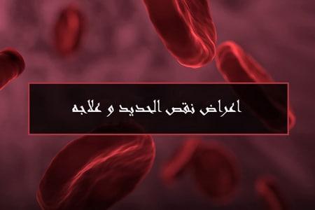 اعراض نقص الحديد وعلاجه